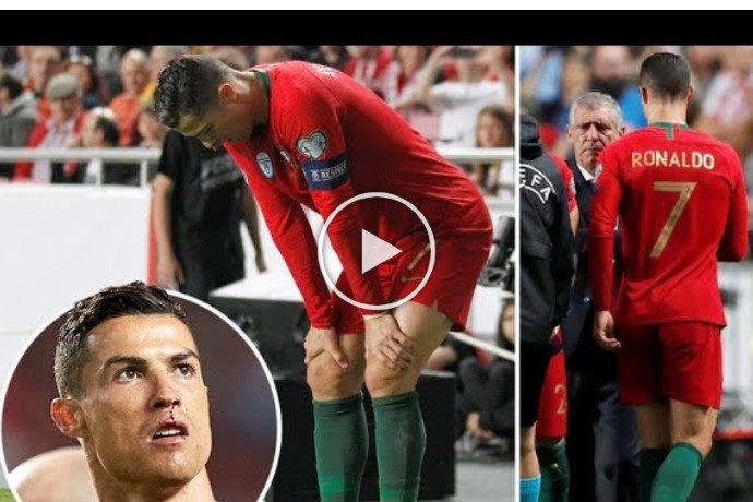 Video: 8 Times Cristiano Ronaldo Was Injured & Was Substituted